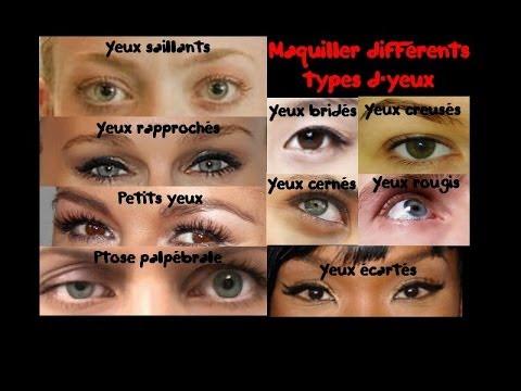 Les oedèmes sur les pommettes supérieures sous les yeux