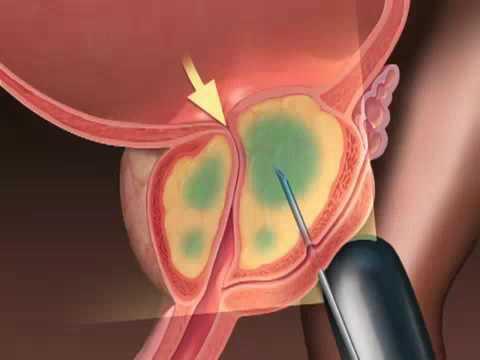 ¿Cuál es el secreto de la próstata en los hombres