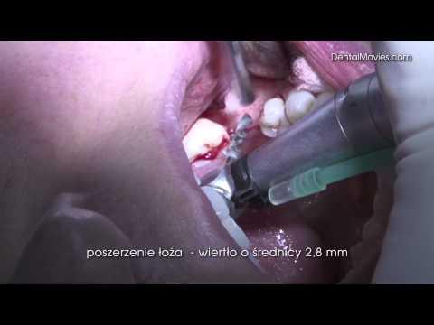 Die Operationen auf der Brust in tscheboksarach