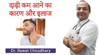 How to grow beard | दाढ़ी कम आने के कारण और इलाज | Best Homeopathic Treatment for Beard Growth
