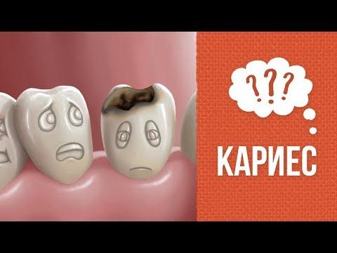 Почему на молочных зубах появляется кариес
