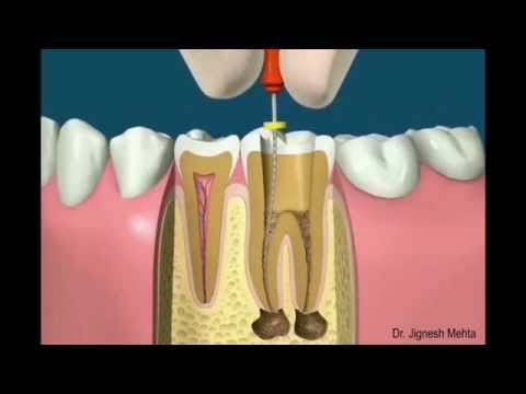 Root Canal Animation by Dr Jignesh Mehta