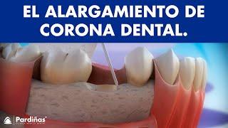 Alargamiento de corona dental ©