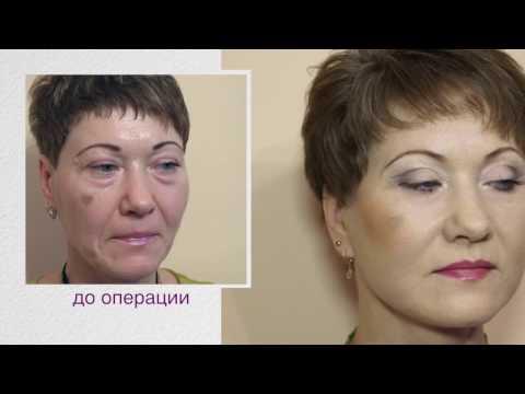 Анатомия лица косметология