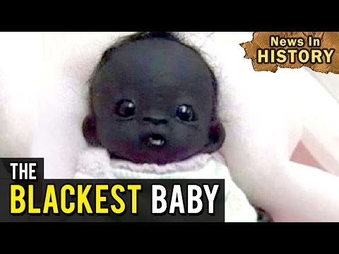 The Blackest Baby In The World - News In History