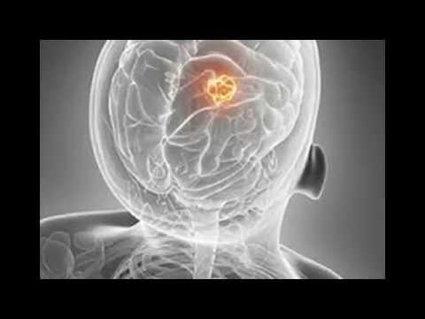 Simptome cancer gat