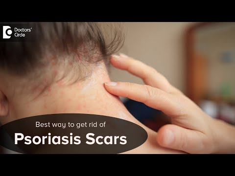 Pszoriázis hajas fejbőrön