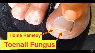 Home Remedy Cure for Toenail Fungus | Cure Nail Fungus with Vicks VaporRub