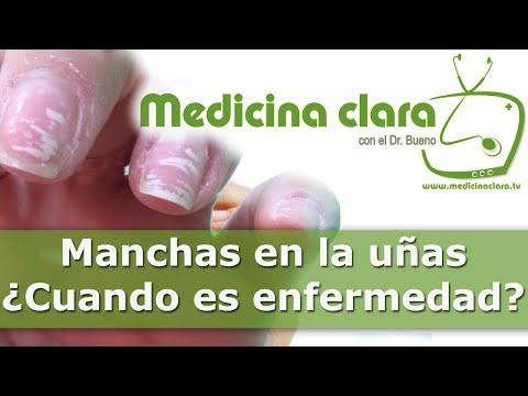 El hongo de los pie como se manifiesta los síntomas y el tratamiento