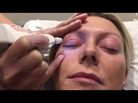 Plexr Treatment   The Clinic - Dr Mayoni
