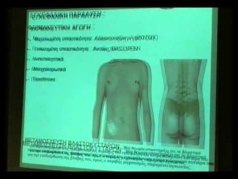 Μουσείο Ακρόπολης 15-5-2013 Δυνατότητες & Όρια Θεραπευτικής Παρέμβασης Down