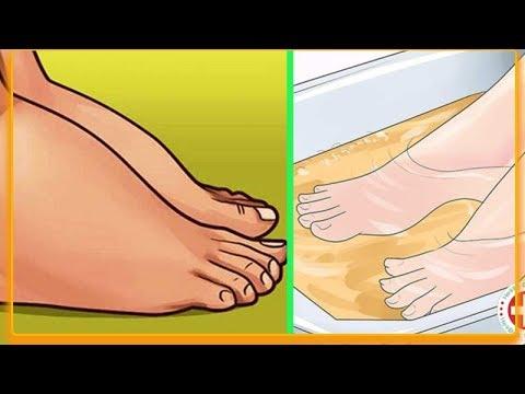 Troficzny wrzód na stopie w cukrzycy Zdjęcie oczyszczalni