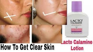 Lacto Calamine Lotion  Review In Hindi | Skincare Benefits ,Price ,Top Uses  Of Lacto Calamine