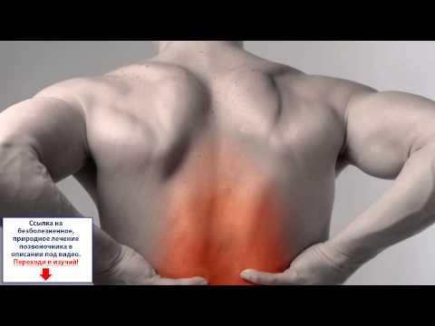 Может ли болеть лоб от шейного остеохондроза