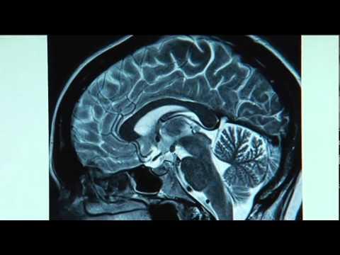 НООТРОП - для работы мозга!