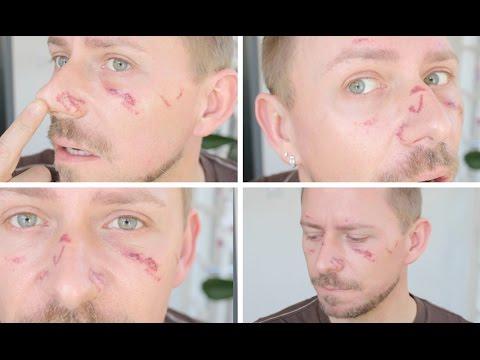 Wie die greisenhaften Pigmentflecke auf der Person herauszuführen