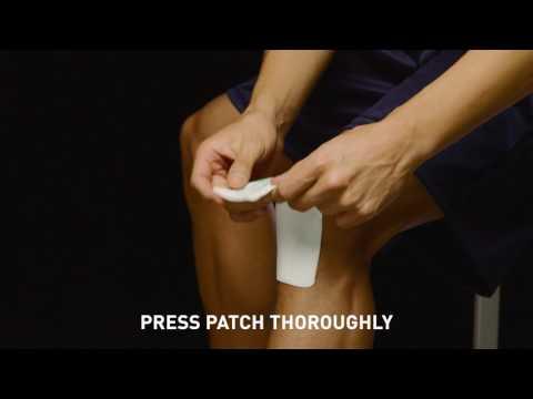 Storia della osteoartrite patologia del ginocchio