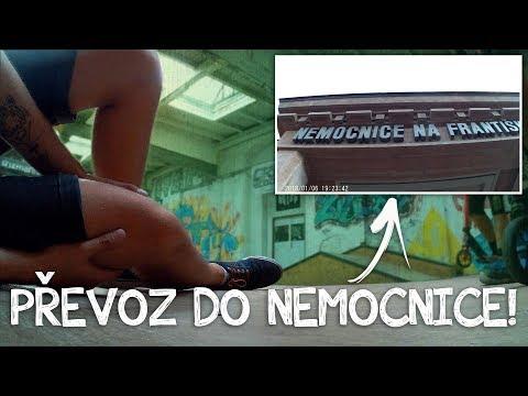 MOJE PRVNÍ ZRANĚNÍ NA KOLOBĚŽCE! | Freestyle Scootering #3