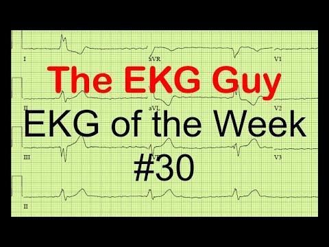 EKG of the Week #30
