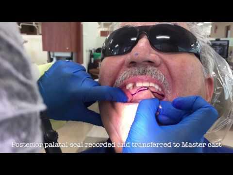 The Immediate Denture Process