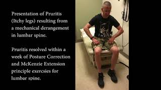 Pruritis (Itchy legs) treated by Posture Correction and McKenzie exercises