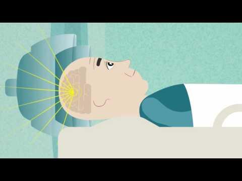 Pressione ridotta per lipertensione