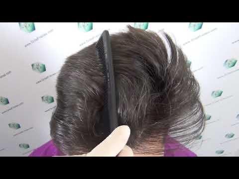 Se i capelli da shampoo il cavallo possono abbandonare