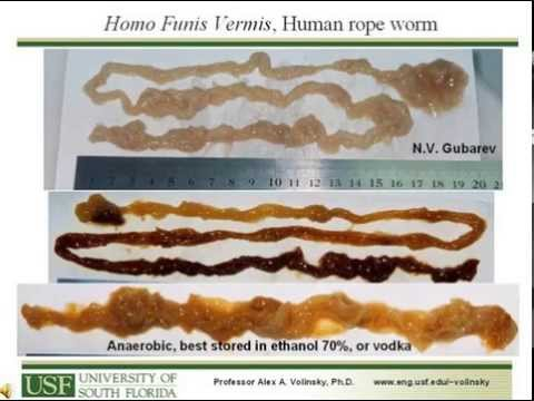 Na worm ilaganap sa lalake