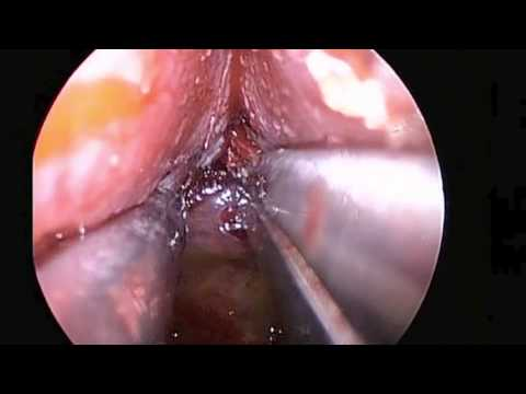 Expanded Endoscopic Trans-septal Approach to the Pituitary