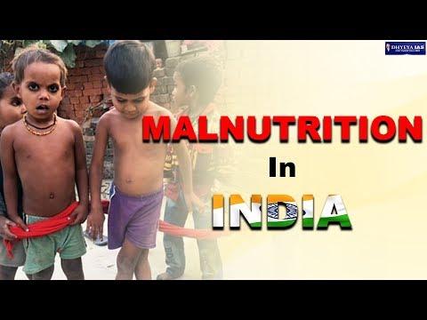 डीएनएस: कुपोषण में भारत