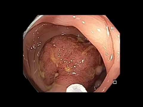 Colonoscopy: Rectosigmoid Colon Giant Polyp Resection