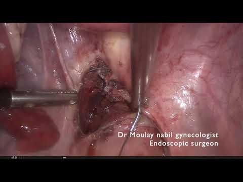 Laparoskopia u pacjentki z wypadającym mięśniakiem macicy