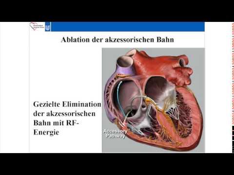 Myokardiale Remodeling bei Patienten mit arterieller Hypertonie