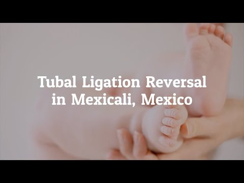 Important Information about Tubal Ligation Reversal in Mexicali, Mexico