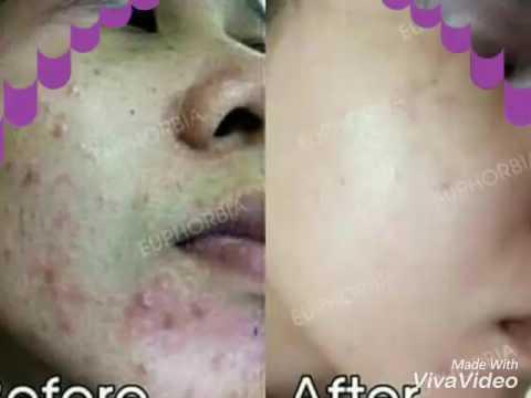 หน้ากากใบหน้าบนผิวคล้ำ