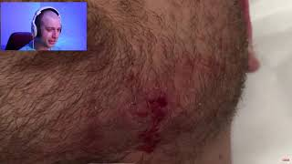 The Huge Face Cyst Dranaige.....ingrown Hair Abscess Cystic Pus