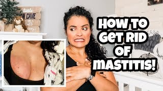 HOW TO GET RID OF MASTITIS NATURALLY / LIFEWITHLO