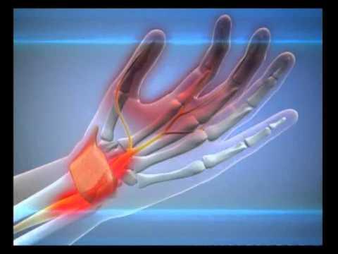 Тянущая боль в левом боку со спины отдает в ногу