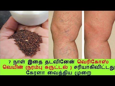 Tratamentul varicozei nalchik