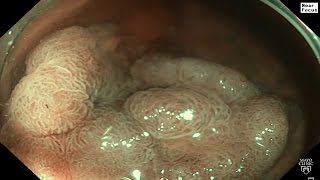 Mayo Clinic Minute: An inside look at colonoscopy advances