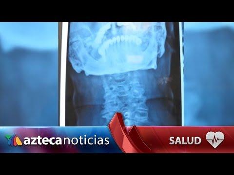 Fractura por compresión de la columna lumbar tratamiento de fotos