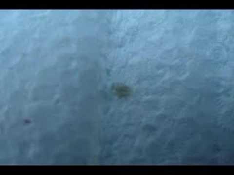 Isang dugo pagsubok para giardia pamagat