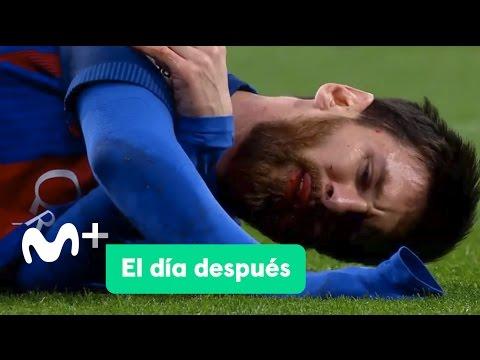 El Día Después (24/04/2017): El Clasico de Messi