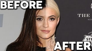 Kylie Jenner REGRETS Plastic Surgery Chat Show