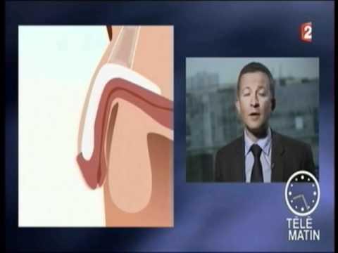 Laugmentation penisa chirurgicalement le prix