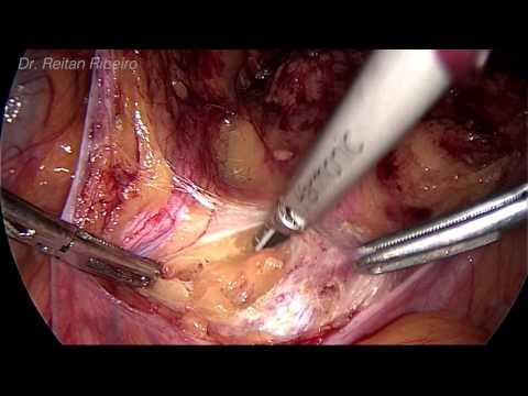 Endometrial Cancer - Retroperitoneal Lymphadenectomy with Macrometastasis