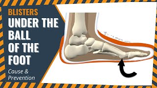 Blisters Under The Ball Of The Foot: Cause & Prevention