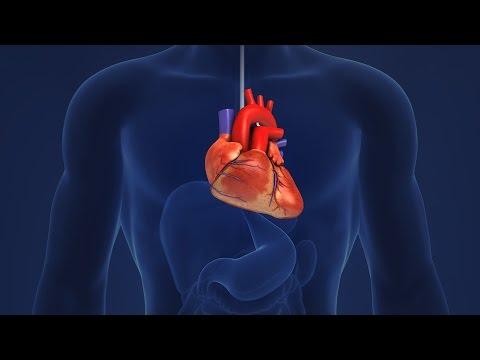 Pulmonale Hypertonie-Behandlung