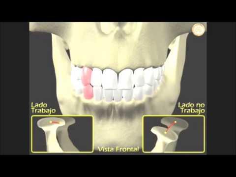 Los síntomas de la lesión de la columna torácica