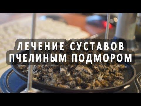 Лечение суставов с помощью пчелиного подмора